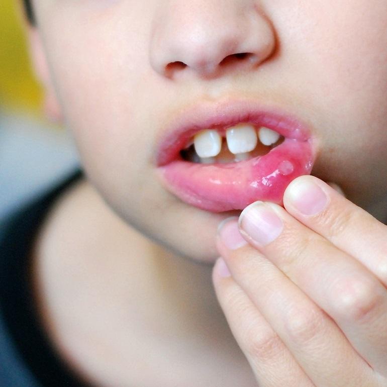 Стоматит в горле у ребенка (с фото): способы лечения язвочек на миндалинах
