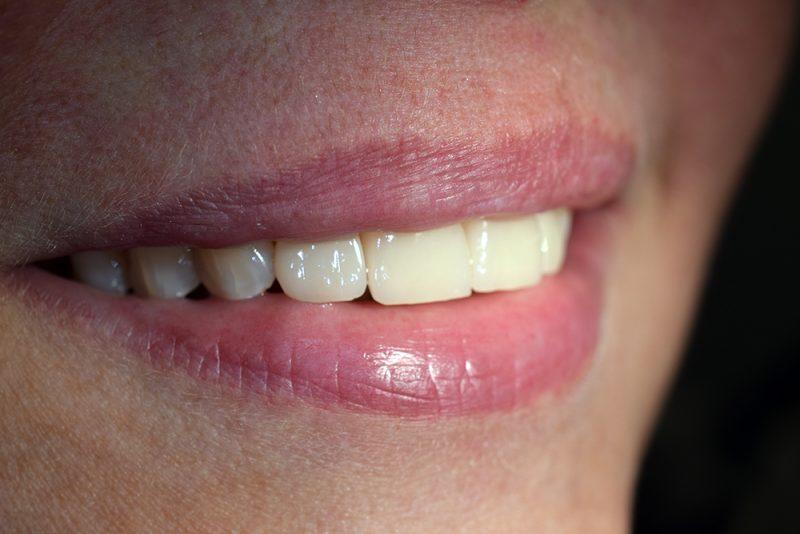 Болит нижняя десна передних зубов