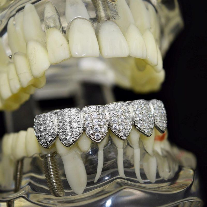 Как называются вставки на зубы у реперов