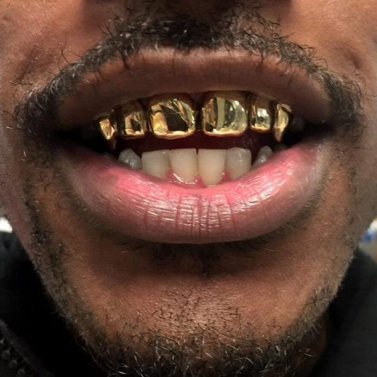 это пограничная смешные картинки про золотые зубы при помощи росписи