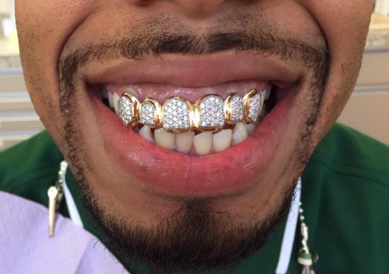 Какие бывают брекеты на зубы фото работы