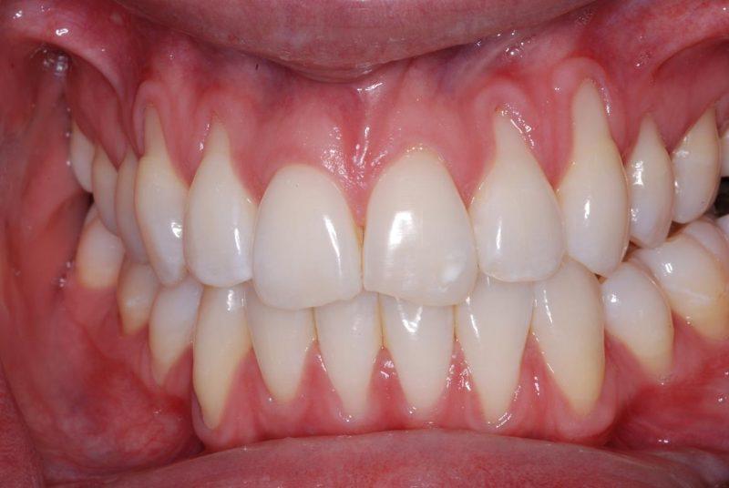 Красная десна вокруг зуба болит но крови нет