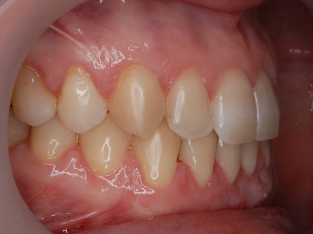 форма корней нижних зубов человека фото долго ещё собираешься
