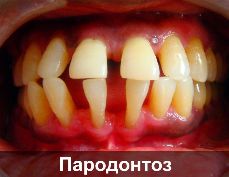 Методы лечение пародонтита и пародонт