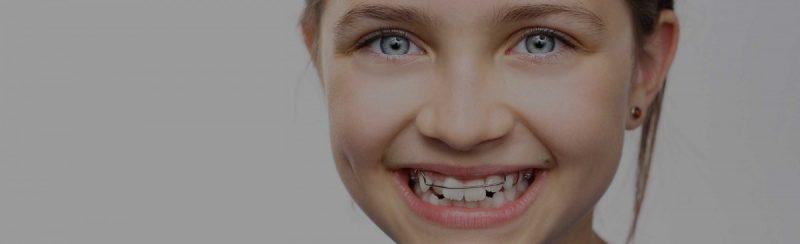 Пластина для выравнивания зубов до и после