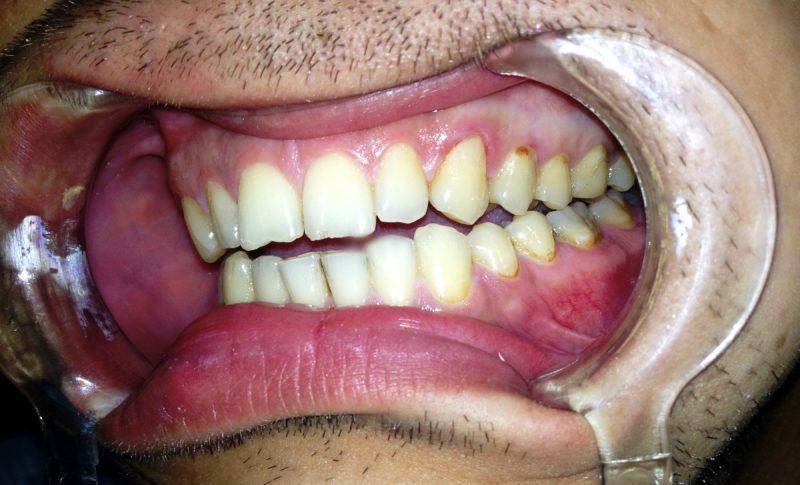 Пришеечный кариес (шейки зуба) — причины, симптомы и методы лечения