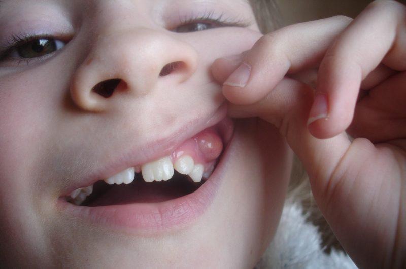 На десне появилась шишка – причины образования белой, твердой шишки на десне возле зуба