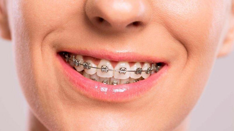 Скобы для зубов для детей и взрослых - цена, фото до и после