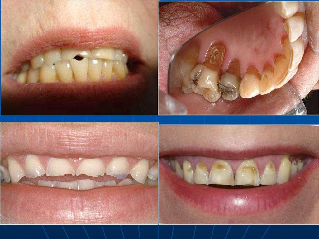 картинка нет зуба нет проблемным зонам комнату посуточно