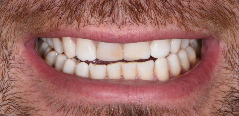 Патологическая стираемость зубов — StomLife