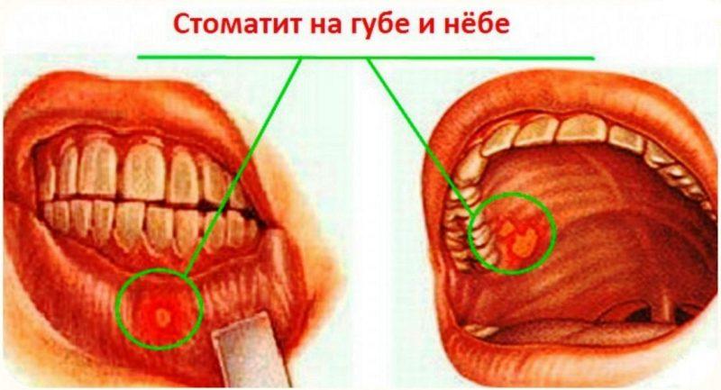 Стоматит в десне фото