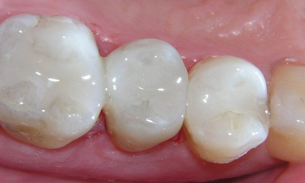 картинка пломба для зуба труда можно