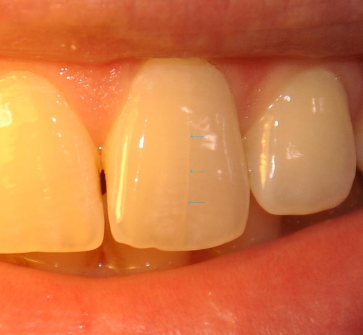 Почему на зубах появляются трещины