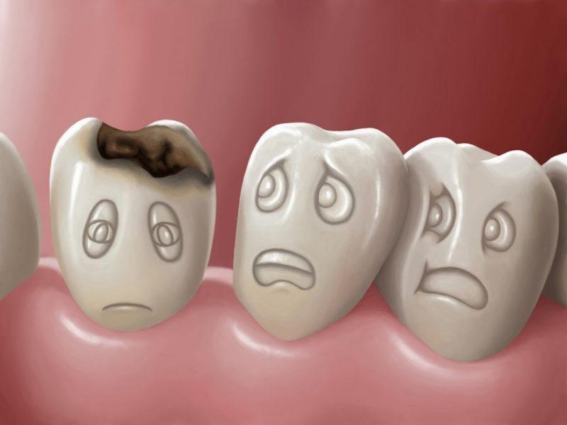Выпала пломба болит зуб что делать