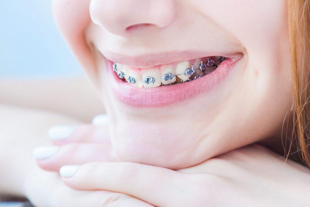 ортодонтия зубы фото установить маячок