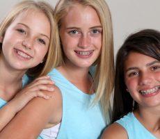 Брекеты для детей: какие лучше ставить подростку, отзывы, видео установки