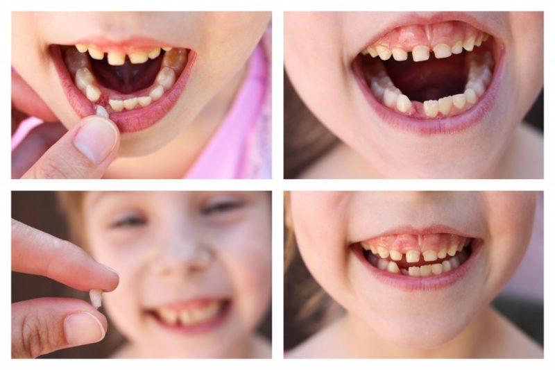 Почему у ребенка 1 год чернеют зубы