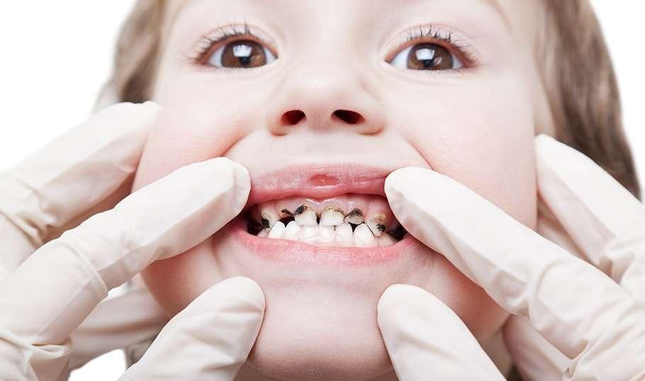 Почему у малышей черные зубы