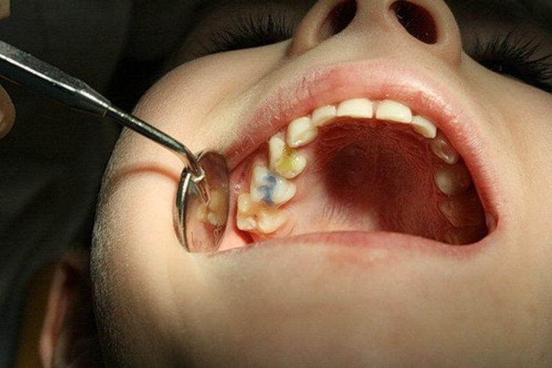 Почему у ребенка 1 год чернеют зубы thumbnail