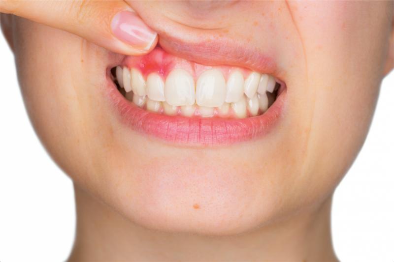 Гнойник на десне: причины абсцесса и как лечить нарыв возле зуба