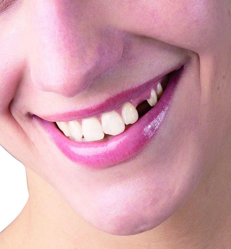 Новые картинки с зубами