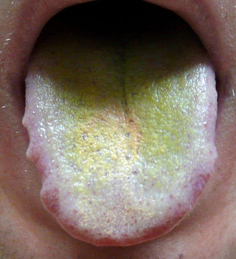 3 года ребенку желтый налет на языке