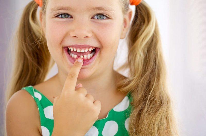 Признаки молочницы у детей во рту фото