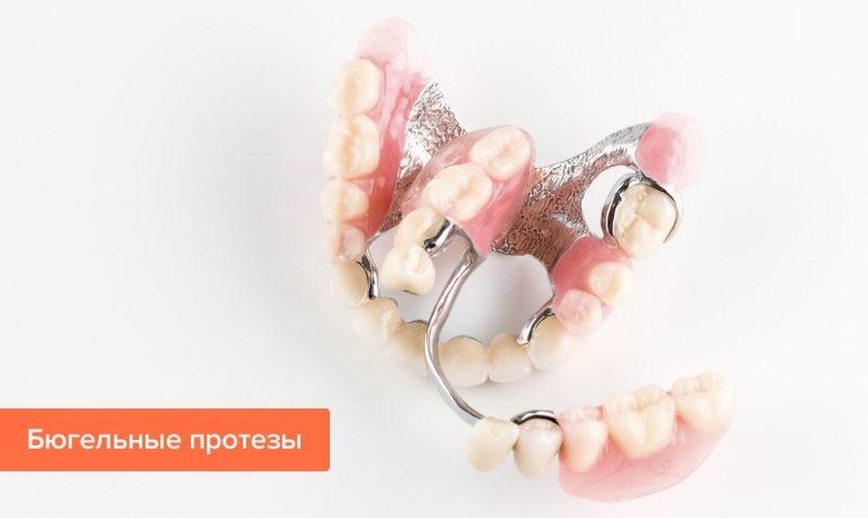 Бюгельные протезы: особенности изготовления и преимущества использования