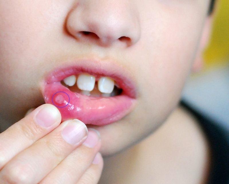 Лекарство от грибка во рту у взрослых