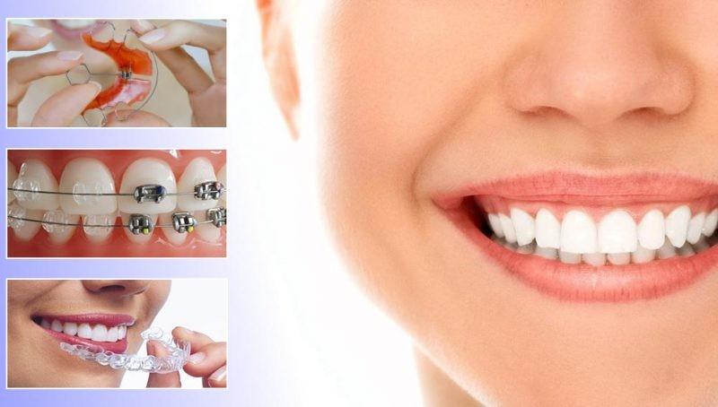 Как ставят брекеты на зубы: видео, как и на сколько устанавливают брекеты