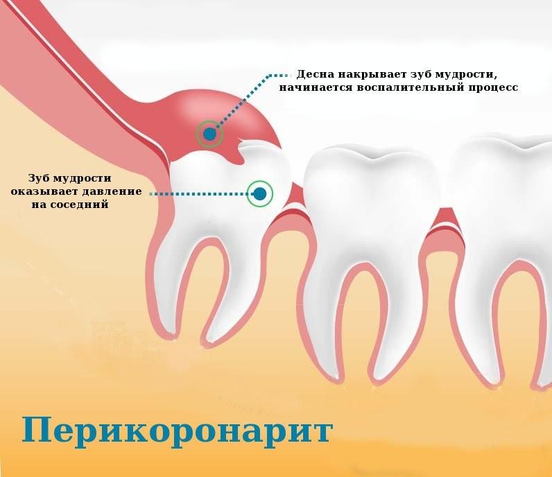 Тонкости удаления капюшона зуба мудрости