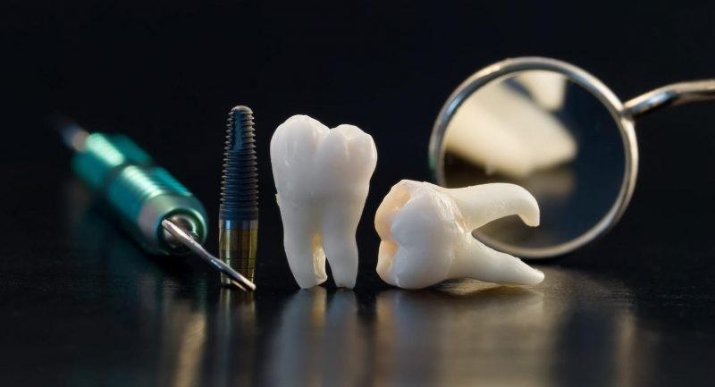 Во сколько лет появляется зуб мудрости и до какого возраста он растет, что делать при болях?