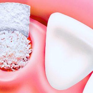 Костная имплантация зубов – мифы и правда про наращивание костных тканей. Пошаговое описание проведения операции