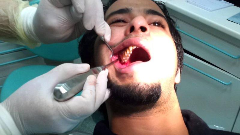 Лечения мудрого зуба как