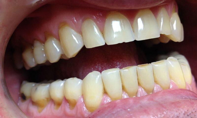 Дырка в зубе, что делать если болит. Черная дырка в зубе мудрости.