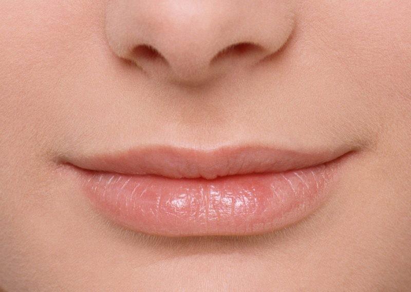 Что делать если опух нос и верхняя губа