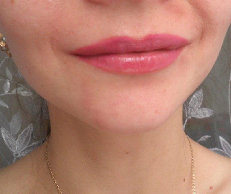 Что делать если опух нос и верхняя губа thumbnail