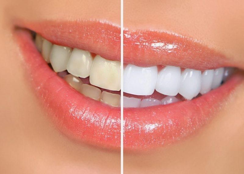 Отбеливающая зубная паста или профессиональное отбеливание?
