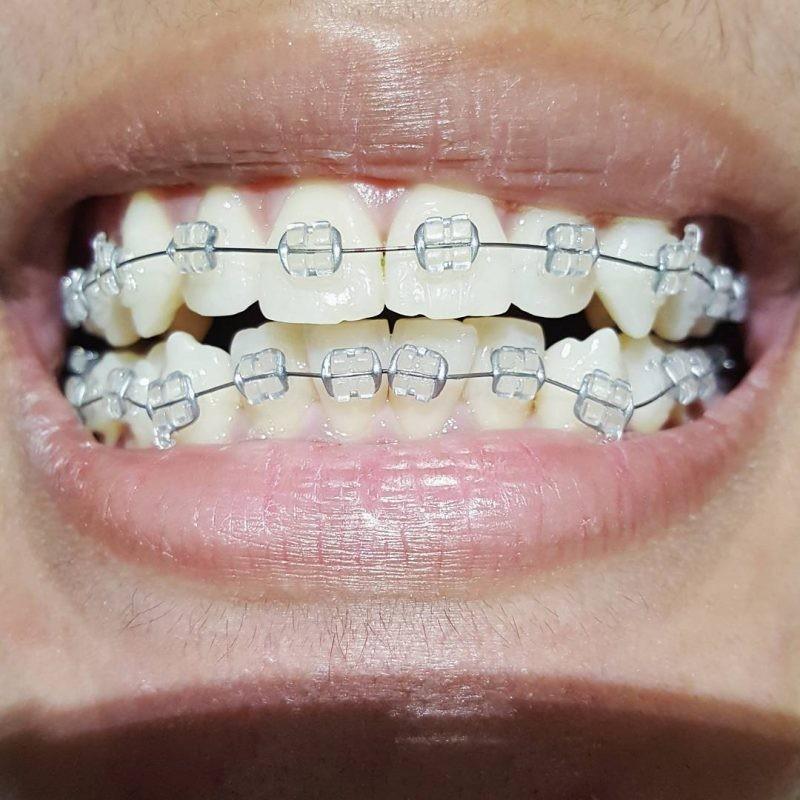 Покрасить волосы расческой с редкими зубьями фото чем