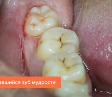 Сколько зубов должно быть у взрослого человека, количество коренных (постоянных) зубов в норме