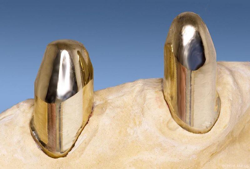 Бюгельные протезы на телескопических коронках (бюгельное протезирование)