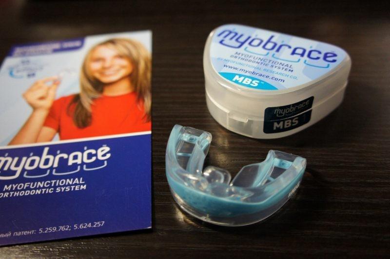 Сколько носить брекеты — как долго нужно ходить с зубными конструкциями