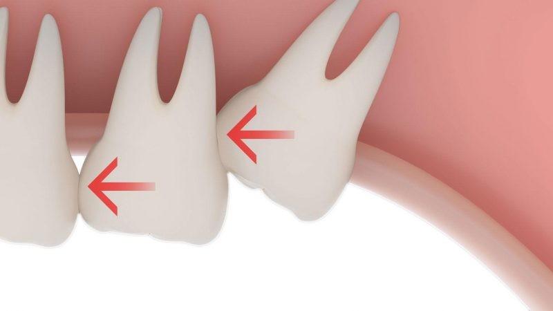 Лечение зуба мудрости на верхней челюсти
