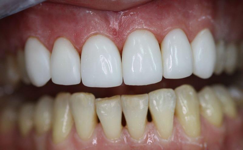 Нижний глазной зуб