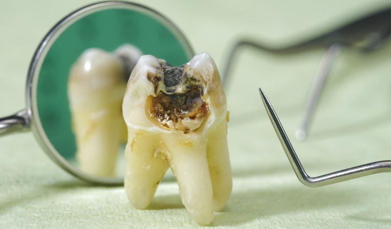 Гнилые зубы у детей и взрослых, причины и профилактика заболевания