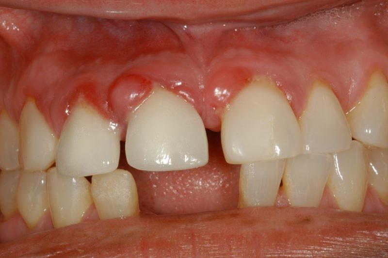 Гранулема зуба: особенности, симптоматика методы лечения
