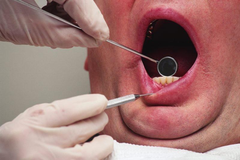Воспаление ротовой полости и языка